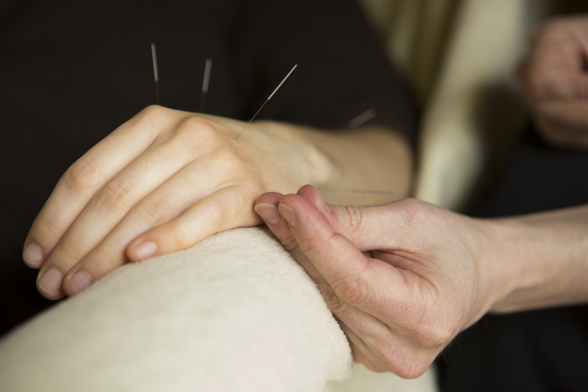 Acupuncture For Weight Loss Cost